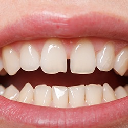 An up-close image of a person's smile and the gap between their upper front two teeth