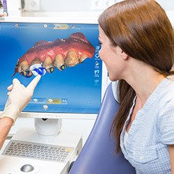 dentist showing patient cerec scan