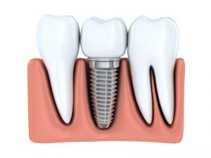 Your dentist in Albuquerque discusses replacement for your missing tooth.
