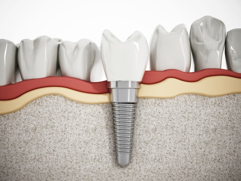 a single dental implant in the lower arch