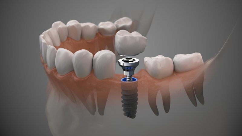a dental implant in Albuquerque